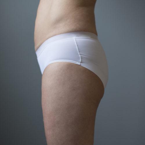 Fettsuging, liposkulptur, fettfjerning, figurforming hos Klinikk Trondheim, plastisk kirurgi