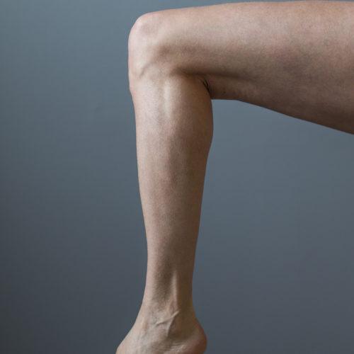Lårplastikk, strammere lår, løs hud lår hos Klinikk Trondheim, plastisk kirurgi