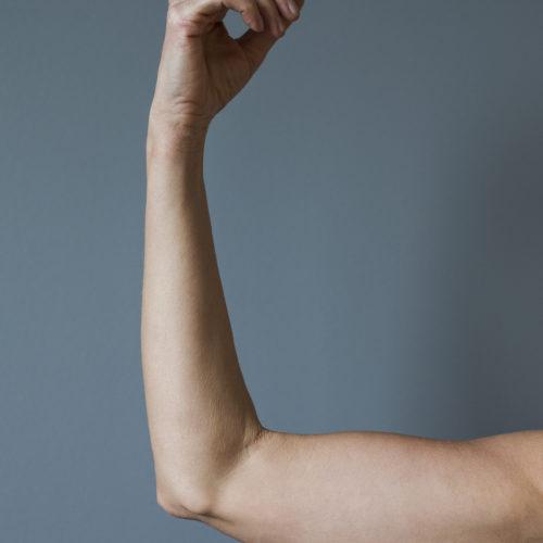 Armplastikk, overarmsplastikk, grevinneheng hos Klinikk Trondheim, plastisk kirurgi