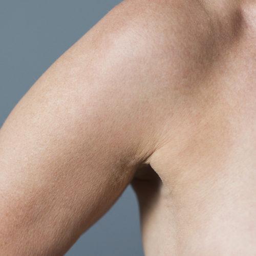 Hyperhidrose, hyperhidrosis, svettebehandling, fjerne svettekjertler, svetteplager, økt svette hos Klinikk Trondheim, plastisk kirurgi