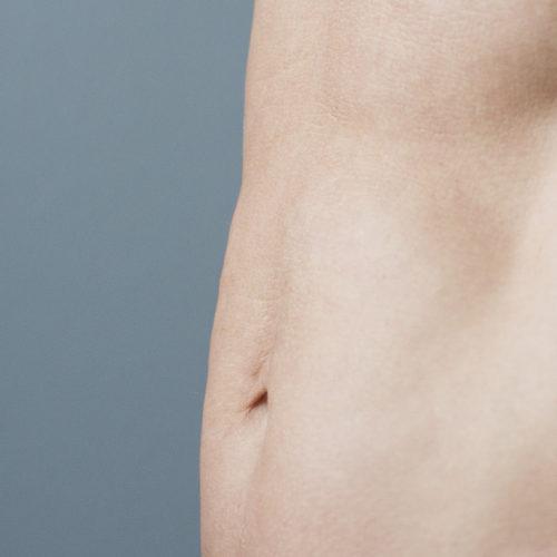 Mageplastikk, bukplastikk, delte magemuskler operasjon, gravid hos Klinikk Trondheim, plastisk kirurgi