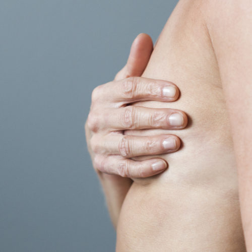 Brystløft, hengebryst hos Klinikk Trondheim, plastisk kirurgi