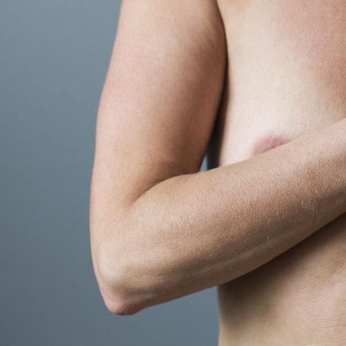 Brystforstørring, brystforstørrelse, silikon hos Klinikk Trondheim, plastisk kirurgi