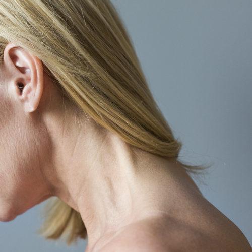 Ansiktsløft, facelift, stramme opp ansiktet hos Klinikk Trondheim, plastisk kirurgi