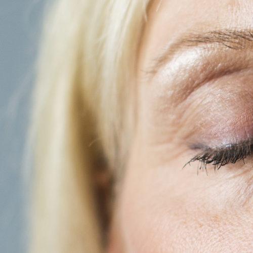 Øyelokkoperasjon, trondheim, tunge øyelokk, poser under øyne hos Klinikk Trondheim, plastisk kirurgi