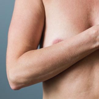 Brystforstørrelse med eget fett, fettransplantasjon hos Klinikk Trondheim, plastisk kirurgi
